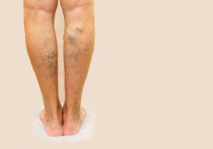 Křečové žíly - postrach krásných nohou