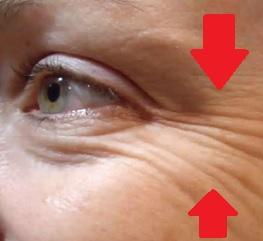 Vrásky kolem očí vám přidávají roky. Zbavte se jich