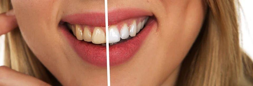 Toothy bělení zubů